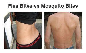 Fulgii musculare împotriva muscaturilor de țânțari - aflați diferența