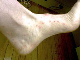 Sand Flea Bites pe picior
