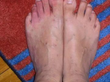 purtând picioarele de purici