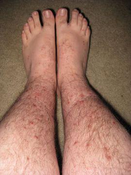 purici picioare picioare picioare